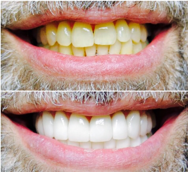 Teeth whitening in Clawson before and after