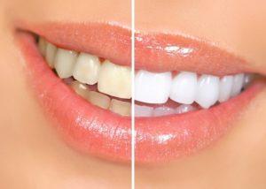 Teeth Whitening in Detroit